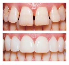 braces glasgow